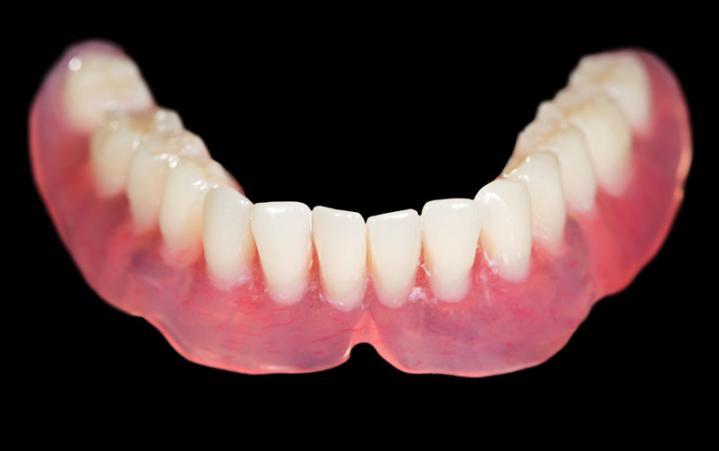 prothèse dentaire fixe mons